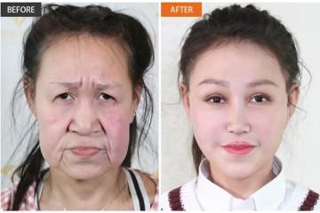15岁少女 8小时手术换脸成功!